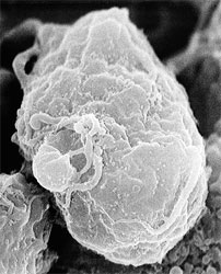 Scanning electron micrograph of human immunodeficiency virus (HIV)